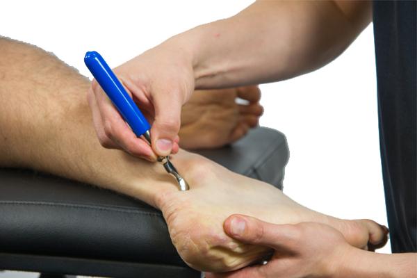 Treating ankle sprain with IASTM